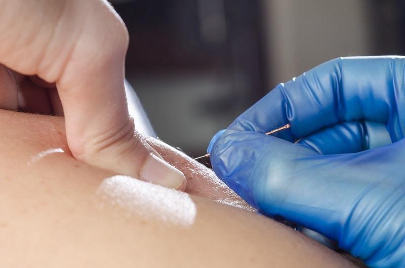 Fysiotherapie Den Bosch, Hoofdklachten, rugpijn bestrijding, fysiotherapie Rompert, Fysiotherapie Het Wielsem, Hambaken fysio, Fysio Den Bosch,